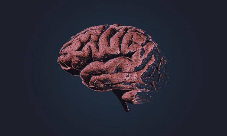 Researchers link anxiety to high Alzheimer's disease onset risk