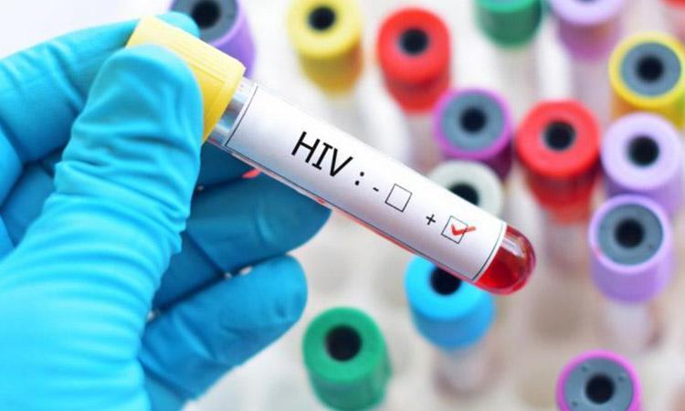 HIV, covid 19, covid 19 affect, People with HIV more likely to get sick, People with HIV more likely to  die from Covid